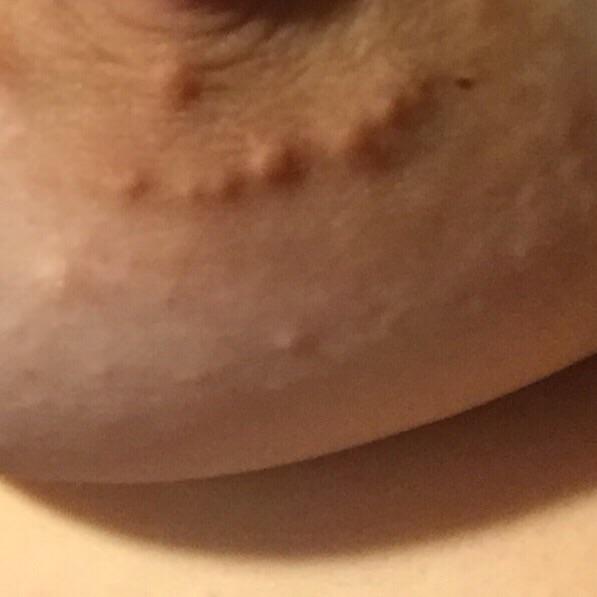 Weird Puffy Nipples 99