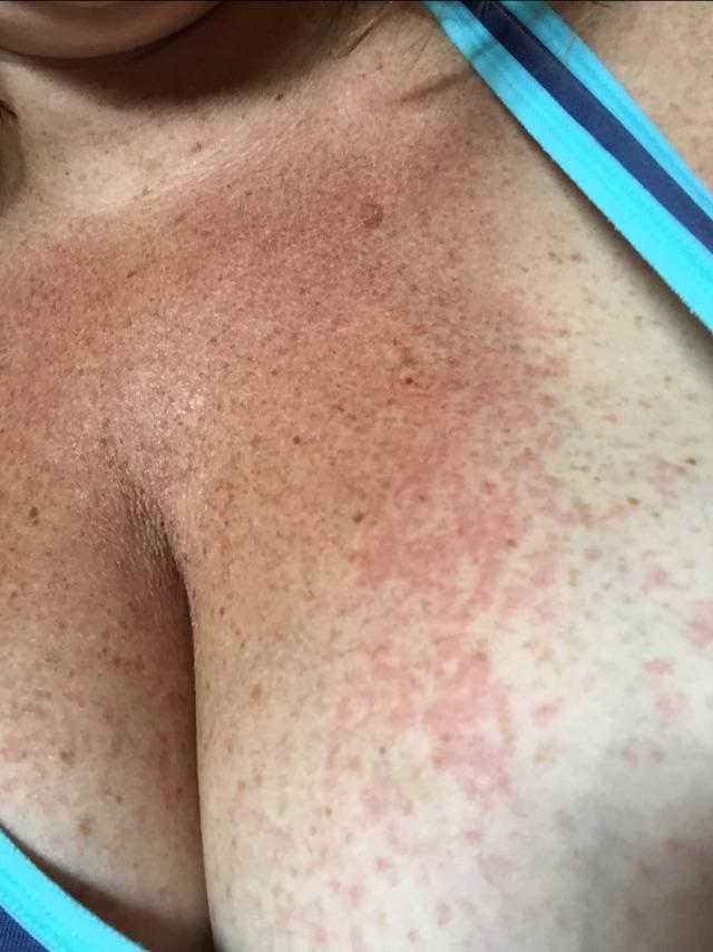 Rash Under The Breast