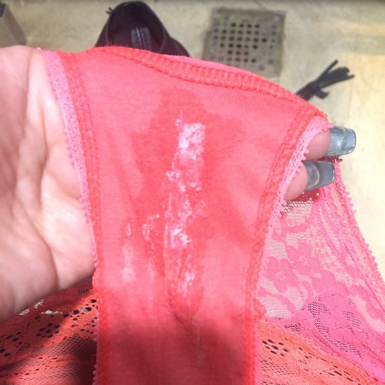 is this a yeast infection or normal discharge cause I'm ...