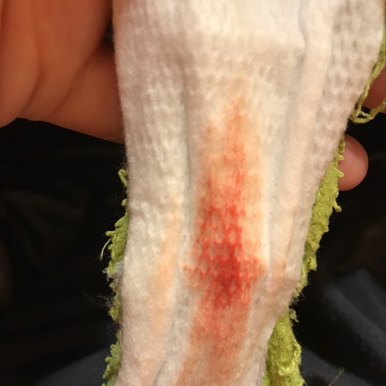 TMI! Too heavy for implantation bleeding? This is five days