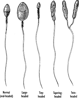 Pictures of abnormally shaped sperm