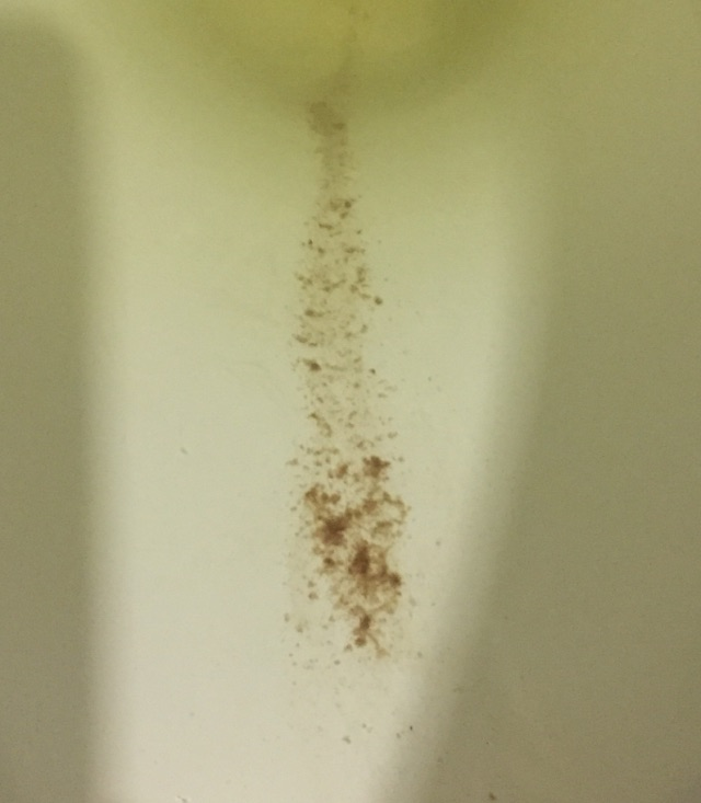 Warning *TMI* Brown spotting / flakes in pee - Glow Community