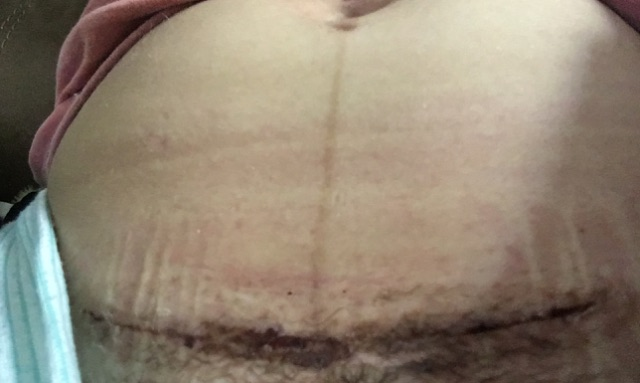 3 weeks postpartum c section scar, normal or not? TMI ...