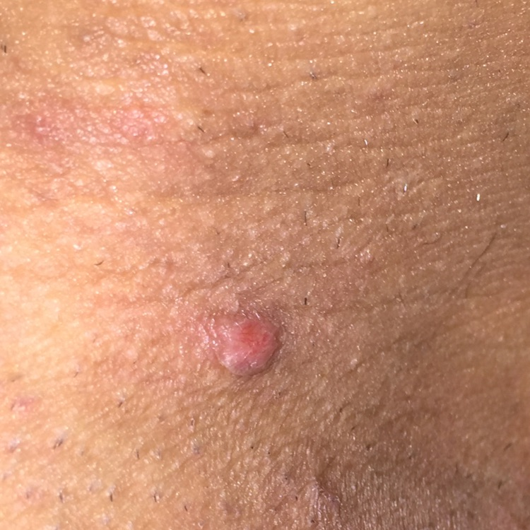 Blisters in vagina