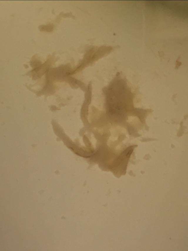 TMI Photo Warning! Jelly like brown discharge? - Glow Community
