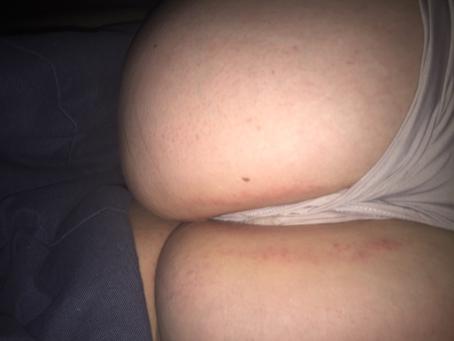 Hairy butt cheecks pic 997