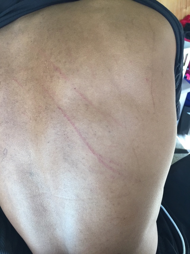 My boyfriend has scratches on his back