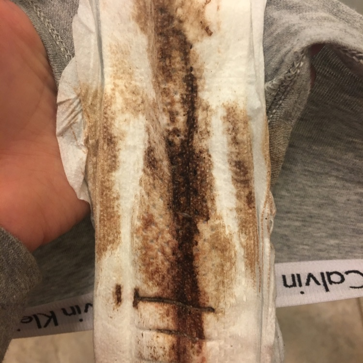 Brown Discharge Before Period
