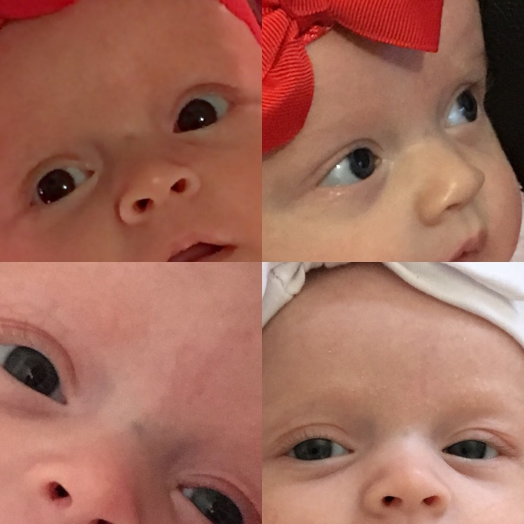 Anyone elses babies have this vein between their eyes? I