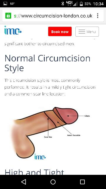 Adult circumcision style
