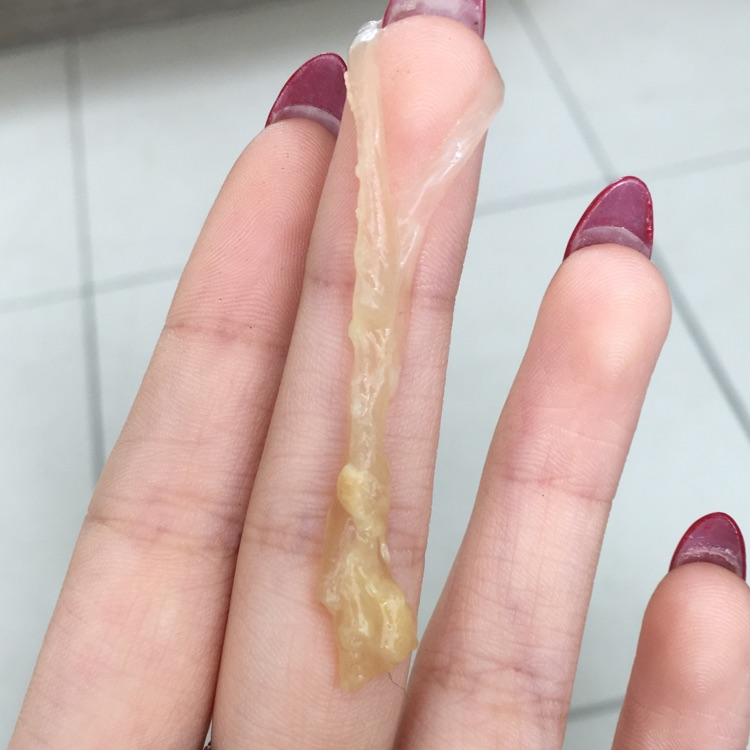 What Does Normal Vaginal Discharge Look Like