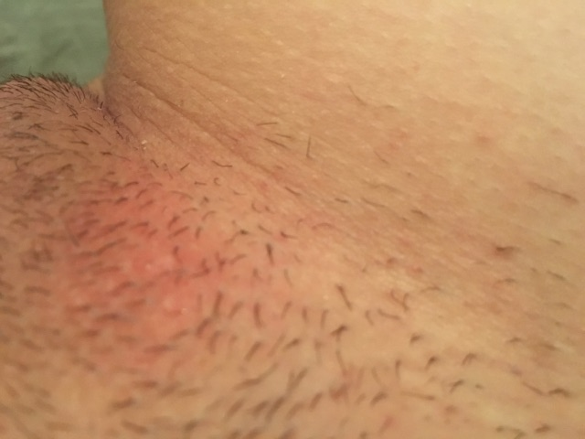 Are These Razor Bumps Burns From Shaving Glow Community