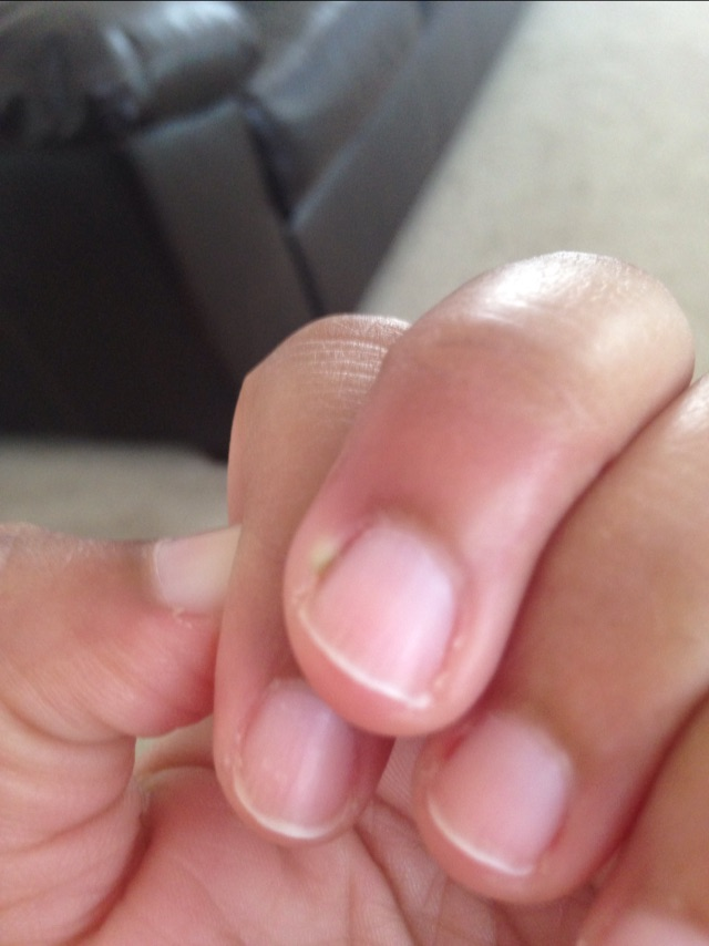 Finger maybe infected, a bit TMI - Glow Community