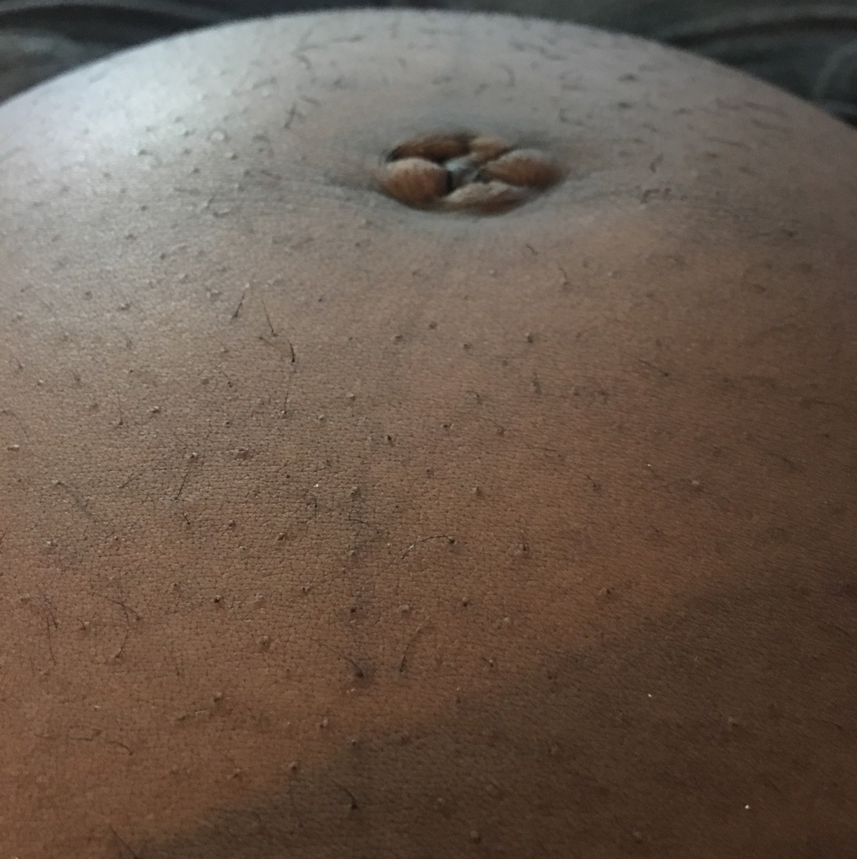 Hairy rectal exam pics