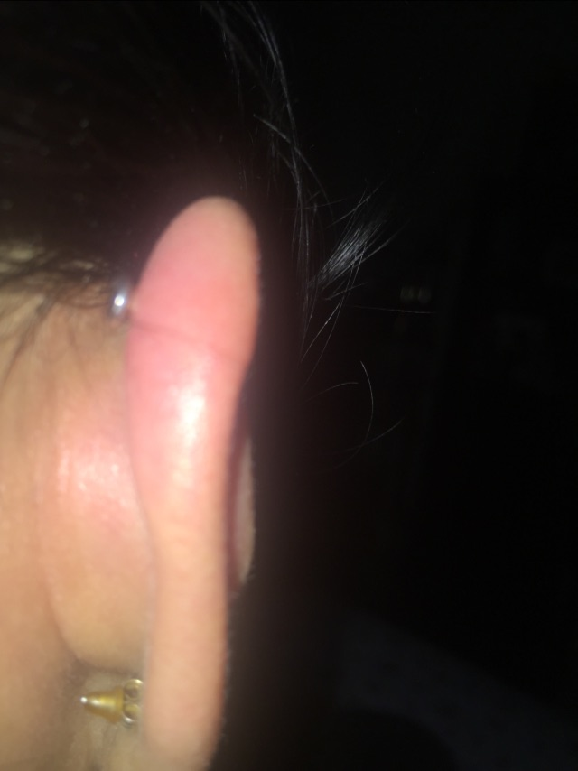 lump on my cartilage piercing