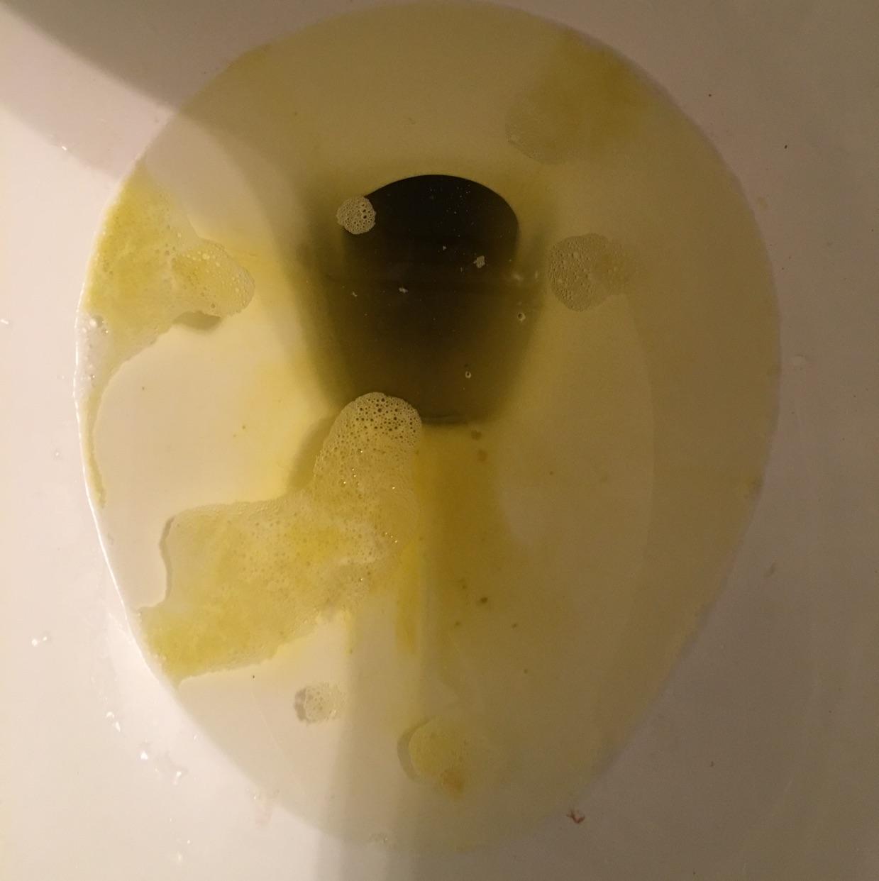 Bile throwing up vomit