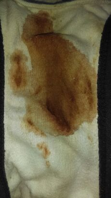 Bleeding masturbation