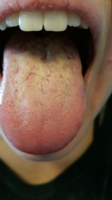 Treatment For Mouth Ulcers