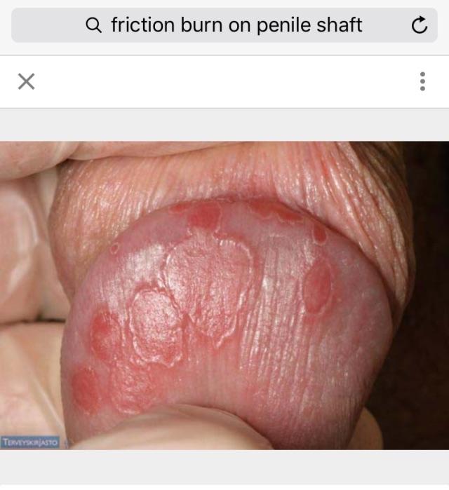 Penis friction burn