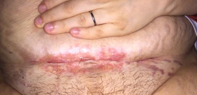 TMI C Section Scar