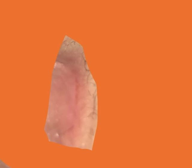Shaving cut on vagina