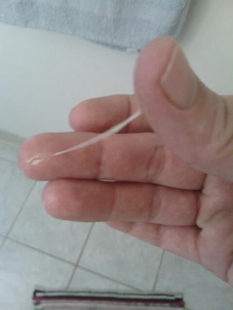 Tmi Cervical Mucus 14 Dpo Pic