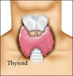TTC- Hypothyroidism