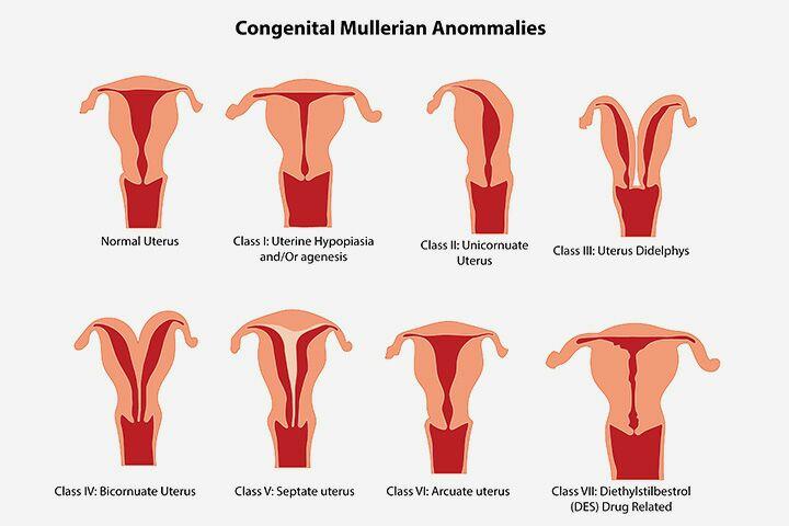 Abnormalities of the Uterus