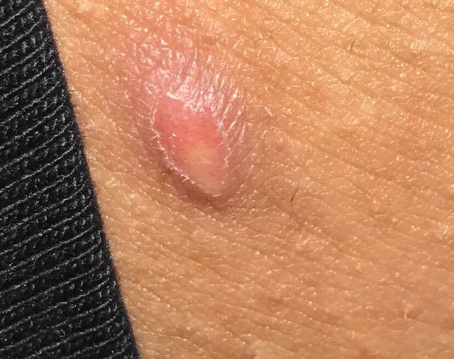 Bikini area bumps