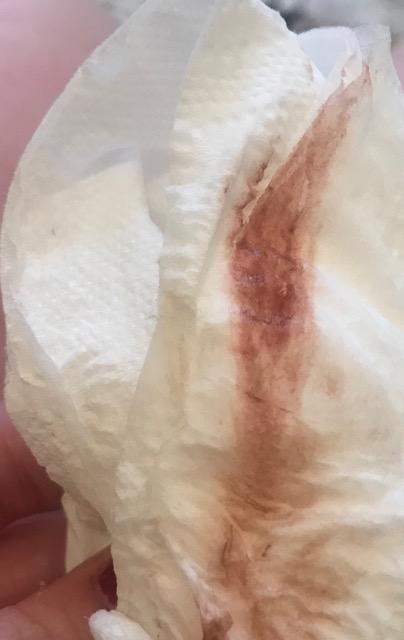 Heavy implantation bleeding ? - Glow Community