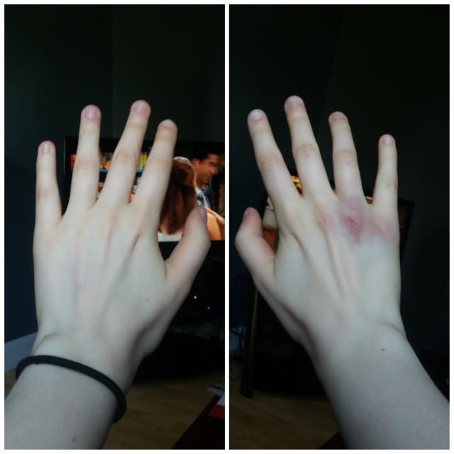Broken Knuckle???? (blurred in case you're squeamish